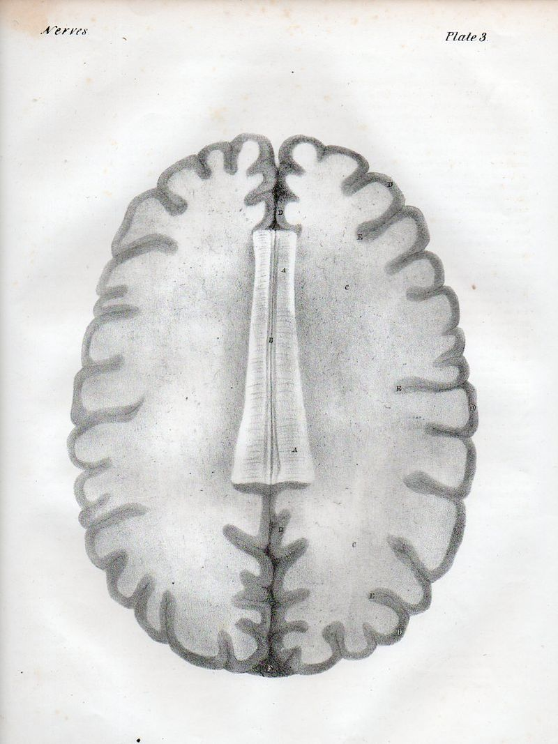 Brain522