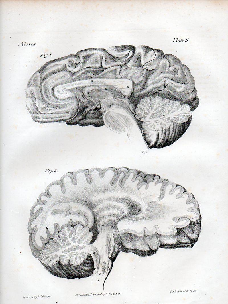 Brain528