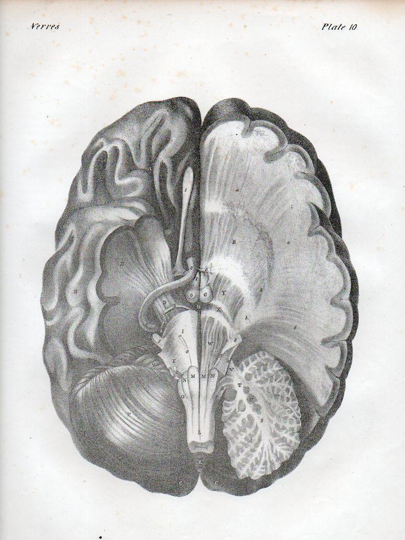 Brain529