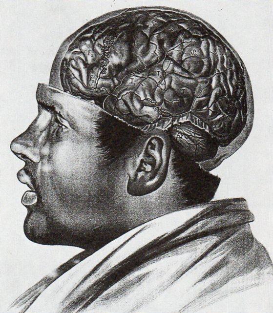 Anatomy adamkiewicz484