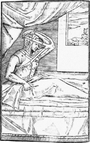 Medical manuscript nose