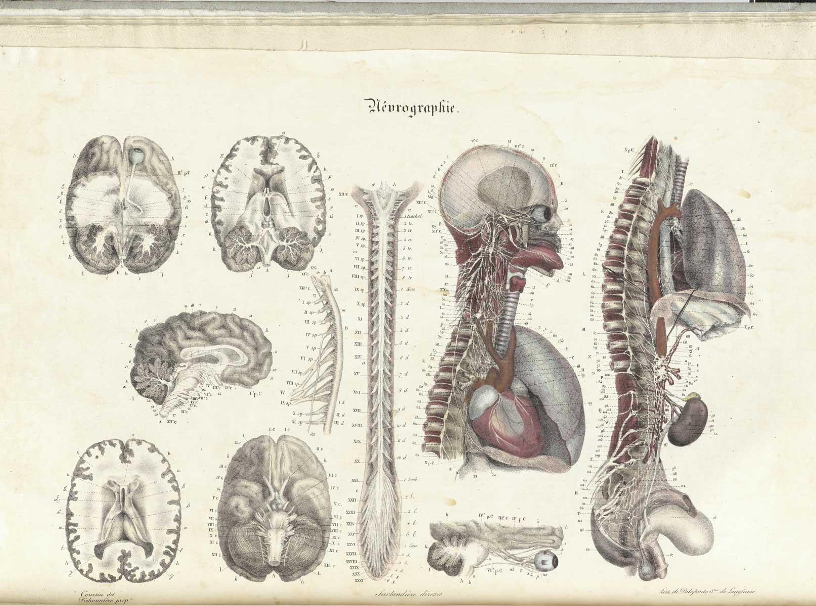 17 Leaves Of Text And 15 Color Lithographed Plates Depicting Human Anatomy Based Upon Sarlandieres Dissections As Stated On The Title Page
