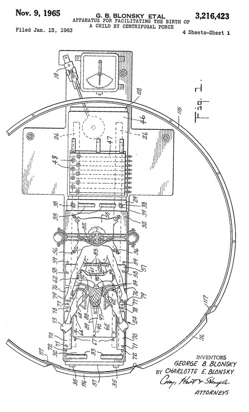 Centrifugal birth patent a overview fixed