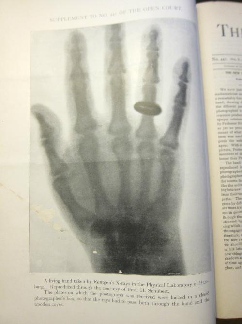 X-ray _2_