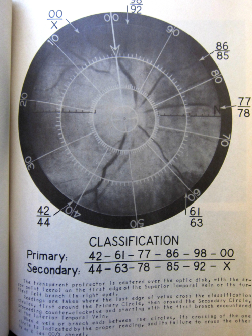 Retina pattern