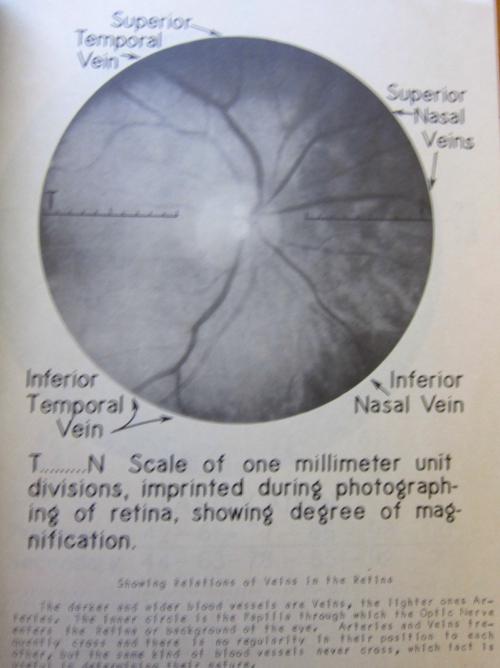 Retina id _2_